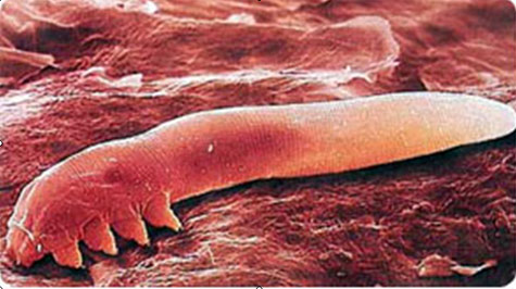 demodex